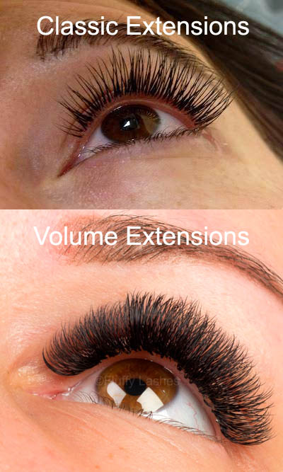 classic extensions vs volume extensions